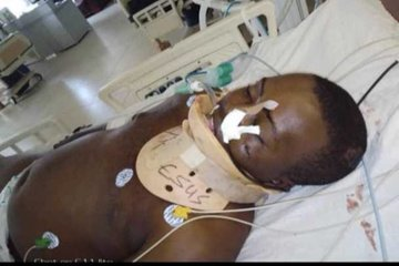 #EndSARS Protester who was Stabbed by Thugs yesterday in Abuja, Dies today (See Photos)