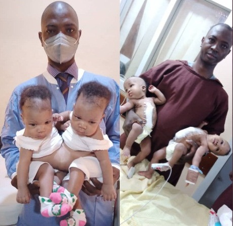 Conjoined female twins separated at the University of Ilorin Teaching Hospital