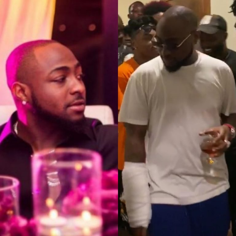 Davido Hand Badly Injured (Photos)
