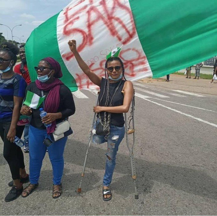 #EndSars Protesters Raise Funds To Buy A Protester Prosthetic Leg (Photo)