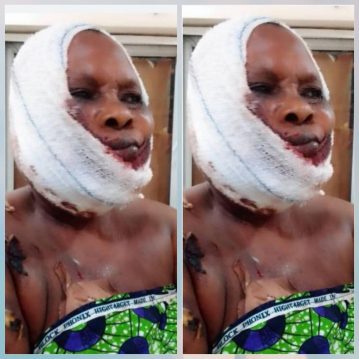 Fulani Herdsmen In Ogun Attack A Woman, Remove Her Finger, Shatter Her Jaw