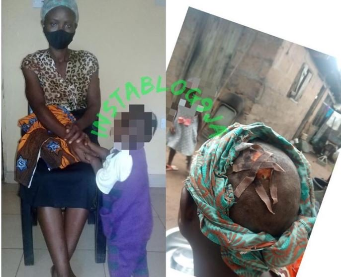 Husband Breaks Wife's Head With An Iron Rod In Enugu